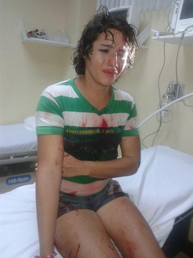 Intentan a asesinar a androgina en Durán - Ecuador -SiluetaX (6)